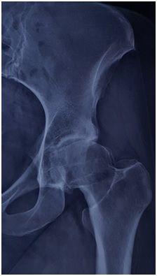 Οστεοαρθρίτιδα Ισχίου - Τομείς Εξειδίκευσης Ελευθέριος Καραδήμας Ορθοπαιδικός Χειρούργος