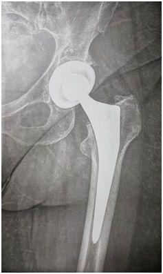 Οστεοαρθρίτιδα Ισχίου - Τομείς Εξειδίκευσης - Οστεοπόρωση - Ελευθέριος Καραδήμας Ορθοπαιδικός Χειρούργος