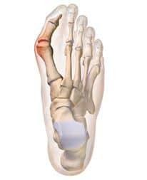 Βλαίσος Μεγάλος Δάκτυλος - Τομείς Εξειδίκευσης Παθήσεις Ποδοκνημικής & Άκρου Ποδός - Ελευθέριος Καραδήμας Ορθοπαιδικός Χειρούργος