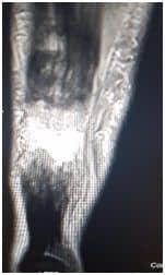 Ρήξη Αχίλλειου Τένοντα - Τομείς Εξειδίκευσης Παθήσεις Ποδοκνημικής & Άκρου Ποδός - Ελευθέριος Καραδήμας Ορθοπαιδικός Χειρούργος